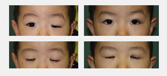 先天性眼瞼下垂