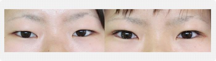 同手術を行うことにより、目の上のくぼみをある程度改善させることも可能です。 (2010年第54回日本形成外科学会、第3回国際最少侵襲形成外科学会発表済)